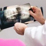 Digital X-Rays and Safety Information